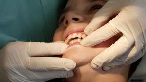 Prendre soin de ses dents au quotidien et chez l'orthodontiste